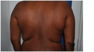 Before Liposuction Flanks, Love Handle on Backs